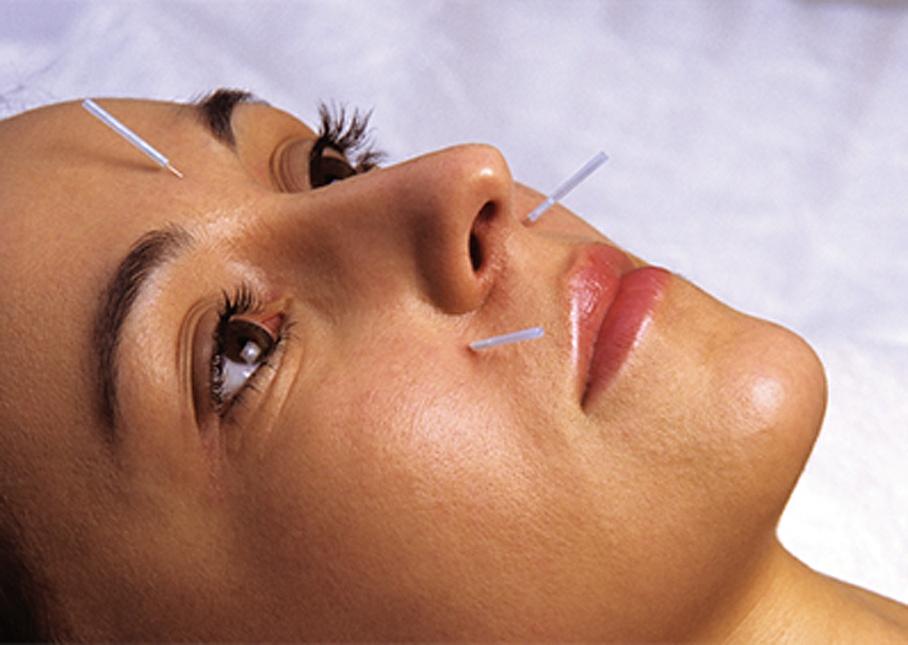 Akupunkturtherapie - Chinesische Medizin Ru GmbH