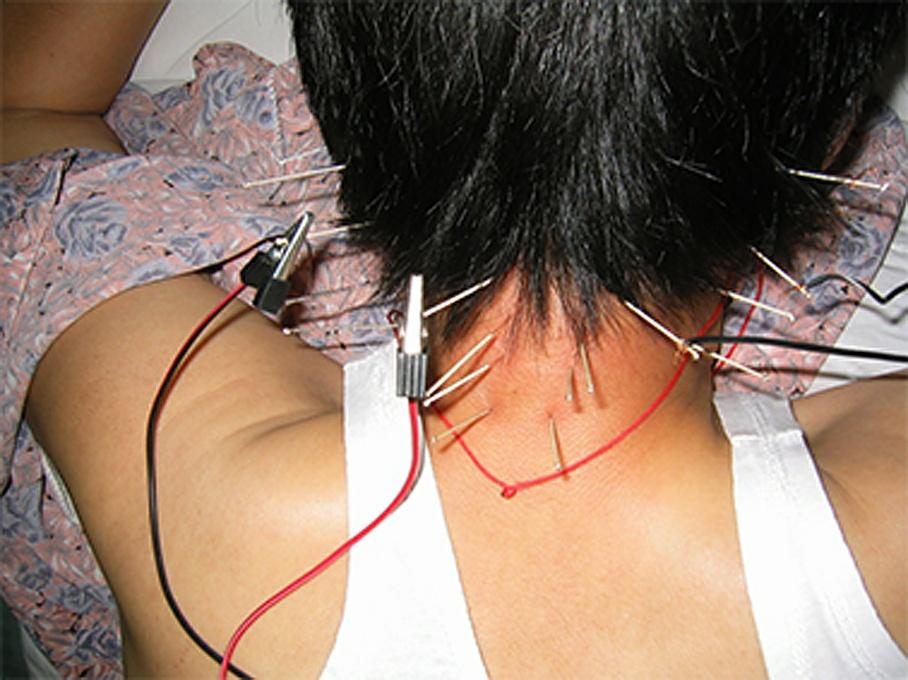 Elektro-Akupunktur - Chinesische Medizin Ru GmbH