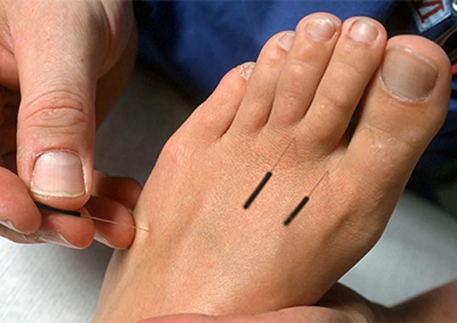 Akupunkturpunkte - Chinesische Medizin Ru GmbH