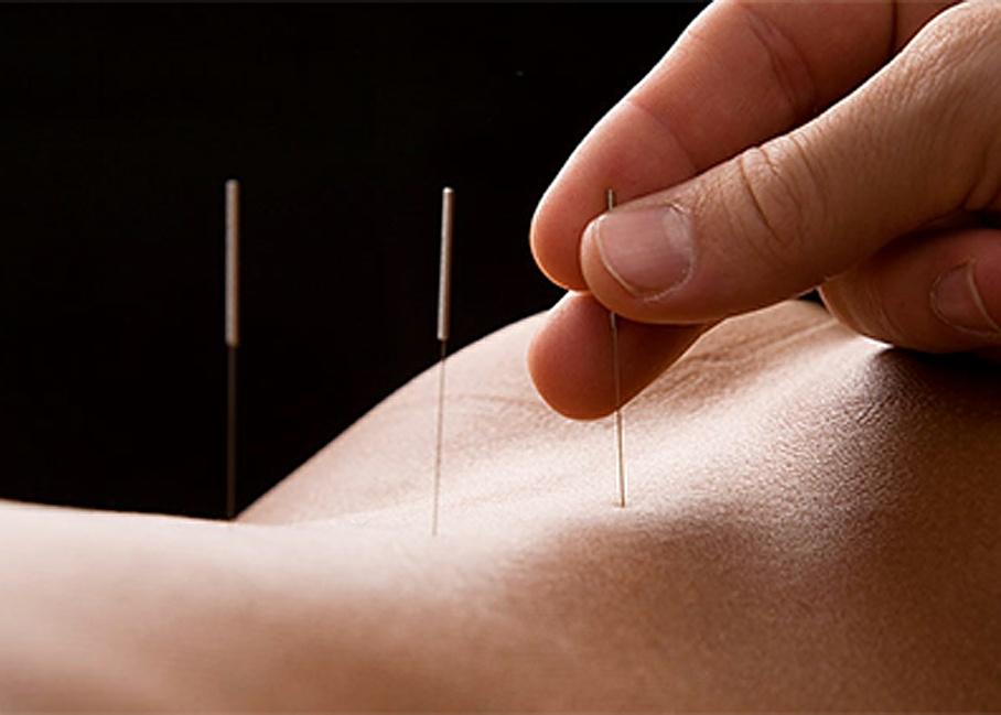 Akupunkturnadeln - Chinesische Medizin Ru GmbH